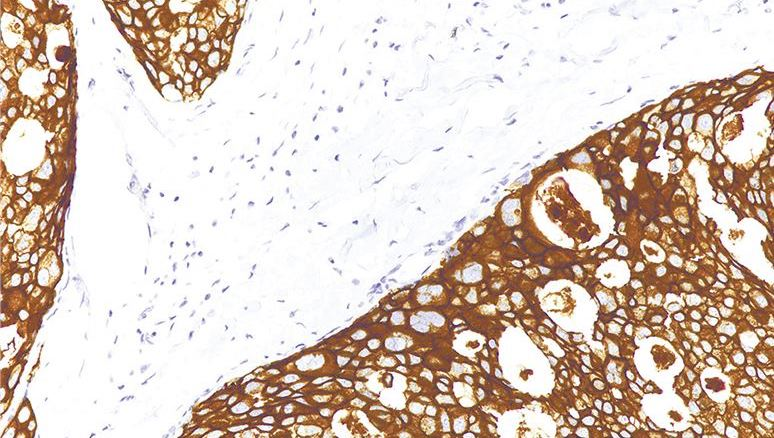 Creative-Diagnostics-Launches-IHC-Pathology-Antibodies-for-Research