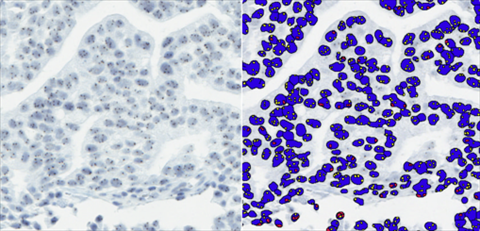 Leica Microsystems and Indica Labs Announce Availability of Integrated Advanced Digital Pathology Image Analysis