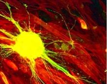 Stem Cells in Neuroscience Research