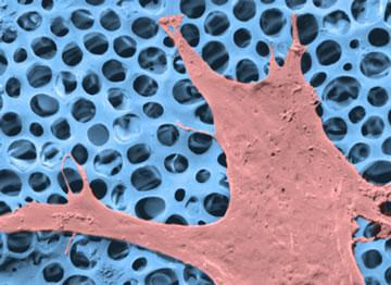 Image of a cell growing on an artificial scaffold, developed at Swansea University, which could be used for wound healing
